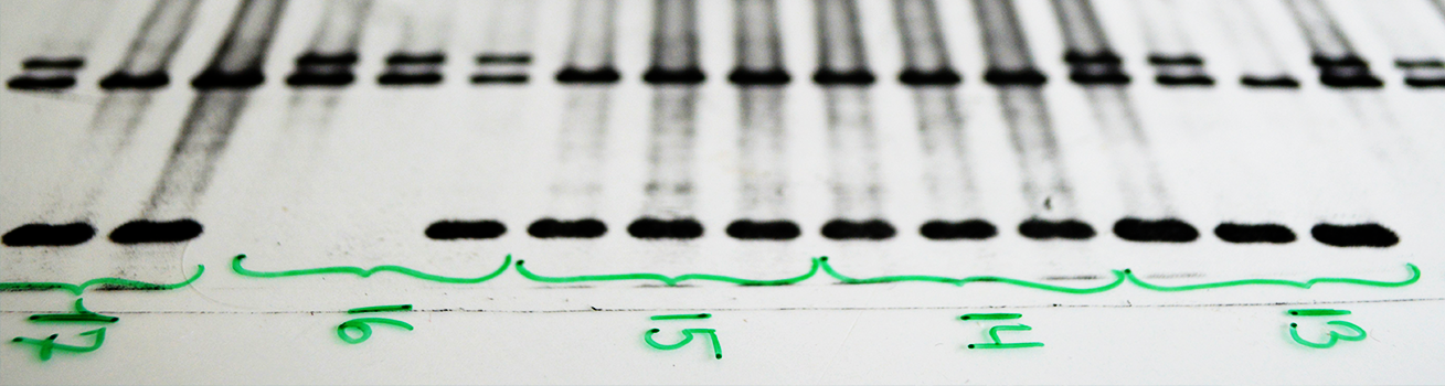 A close up of a dna electrophoresis printout